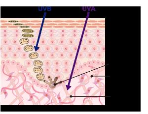 UVB/UVA紫外線ダメージ